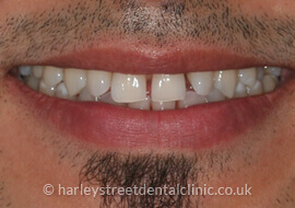 Orthodontics Patient Before