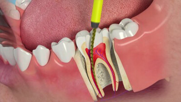 Endodontics (Root Canal Therapies)